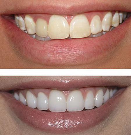 زیبایی دندان با ونیر