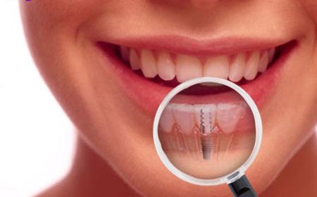 روکش های زیبایی دندان
