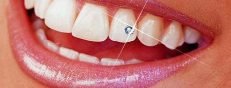 هزینه زیبایی دندان