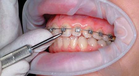 زیبایی دندان بدون ارتودنسی