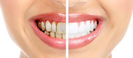 ترمیم و زیبایی دندان