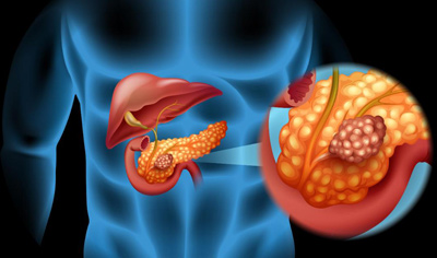سرطان پانکراس بدخیم, علایم سرطان لوزالمعده