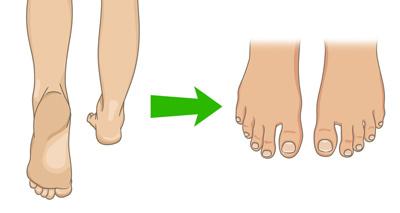 علت پینه پا, درمان فوری پینه پا