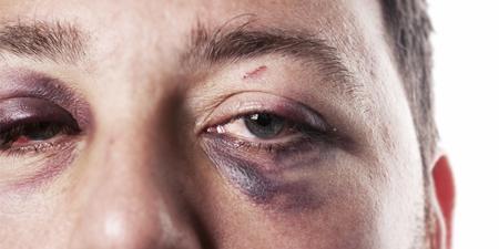 درمان کبودی چشم, کبودی چشم