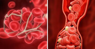 10 راه برای جلوگیری از لخته شدن خون