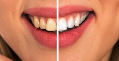 8 راه ساده و طبیعی برای کاهش پوسیدگی دندان