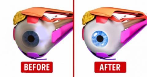 10 ورزش ساده برای تقویت بینایی