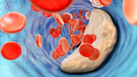 ورزشهای مناسب برای کاهش سطح کلسترول خون