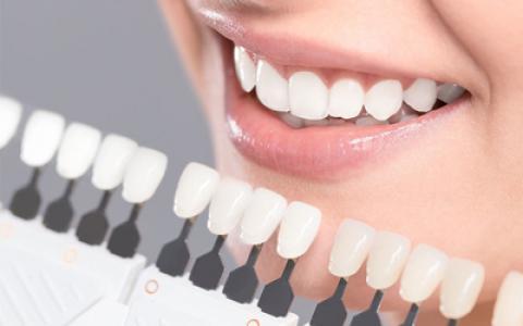 همه چیز درباره کامپوزیت دندان