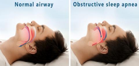 علائم، علل و درمان آپنه خواب
