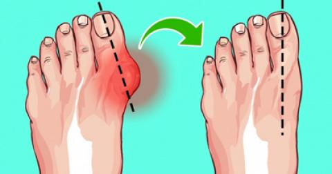 6 راه آسان برای درمان پینه پا بدون جراحی