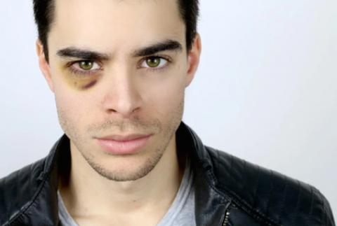 درمان کبودی و ورم چشم در اثر ضربه