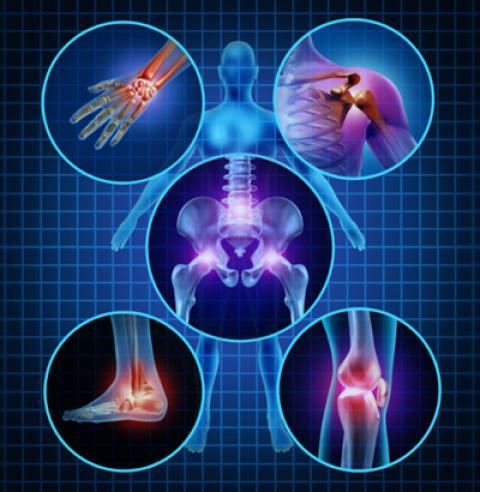 پنج گیاه برای جلوگیری از درد مفاصل