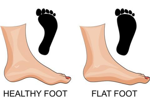 7 تمرین ارتوپدی برای افزایش قوس کف پا و کاهش درد پا