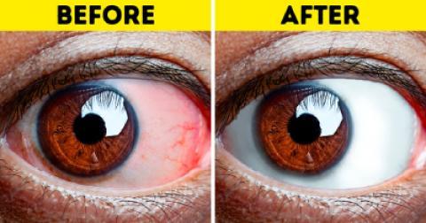 8 تمرین برای رفع خستگی چشم