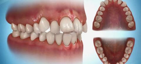 کراودینگ دندان چیست و چگونه درمان می شود؟ روشهای درمان کراودینگ یا نامرتبی دندان
