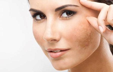 درمان لک صورت, لک صورت, از بین بردن لک صورت