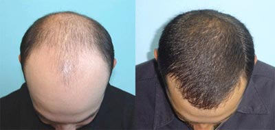 مراحل کاشت مو,پيوند موی طبيعی,ترمیم مو