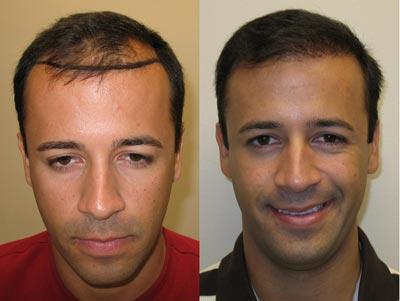روش کاشت مو,جراحی کاشت مو,روش های کاشت مو