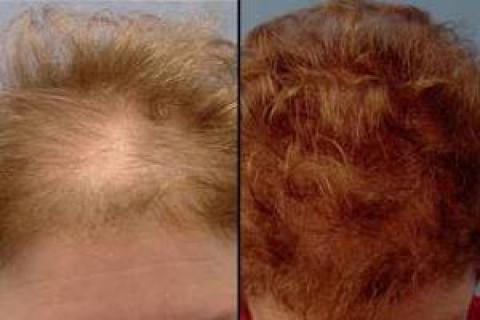 پیوند مو در خانم ها