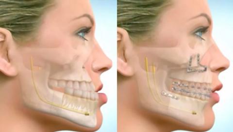 جراحی فک چه تاثیری بر چهره دارد؟