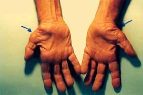 ورزش هایی برای کاهش درد نشانگان تونل کارپال