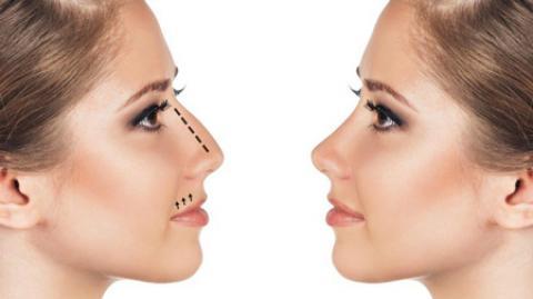 آموزش تصویری ورزش کوچک کردن بینی